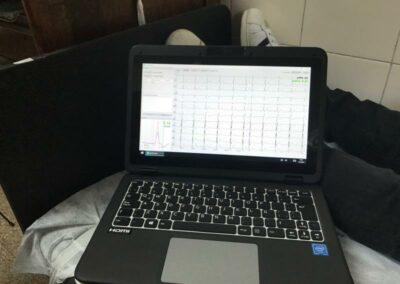 pruebas del centro de diagnóstico móvil EXO