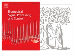 Miniatura de artigo de Processamento e Controle de Sinal Biomédico