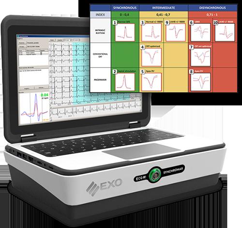 Synchromax, GPS para implantes de marcapasos, CDI y CRT