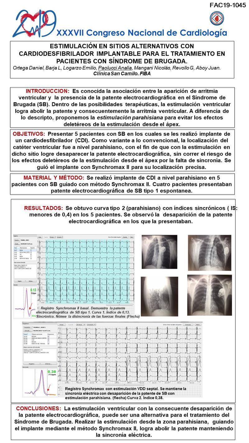 Estimulação de locais alternativos com tratamento cardioversor-desfibrilador implantável Síndrome de Brugada