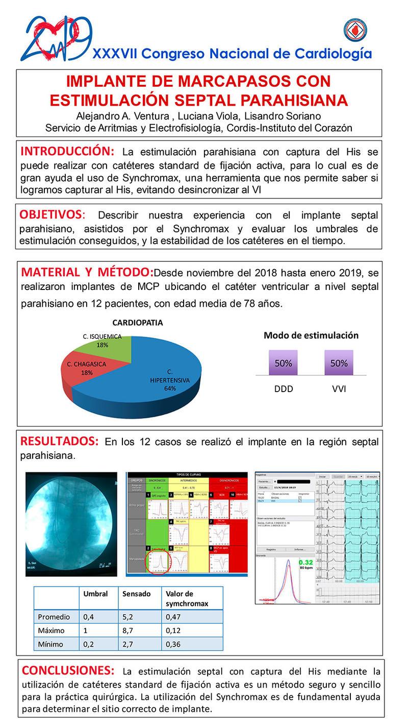 Implante de marcapasos con estimulación septal Parahisiama