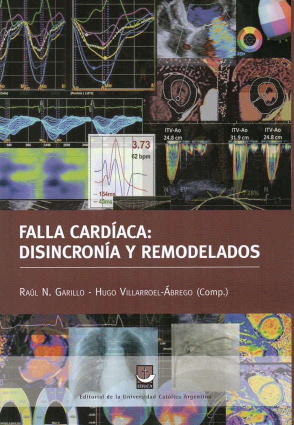 """Tapa del libro """"Falla cardíaca: disincronía y remodelados"""" Dr. R. Garillo y Dr. H. Villaroel-Ábrego"""