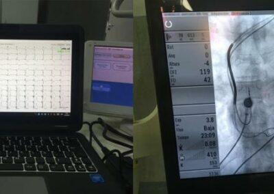 Imágenes del Synchromax durante su utilización